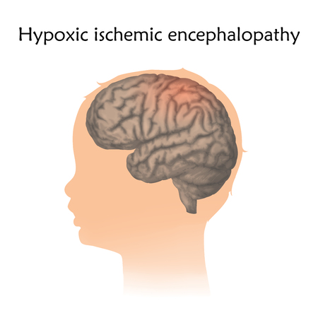 Hypoxic ischemic encephalopathy in infants. Vector medical illustration. Kid, baby, childhood. White background, silhouette of child head, anatomy image