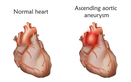 Ascending aortic aneurysm icon Illustration