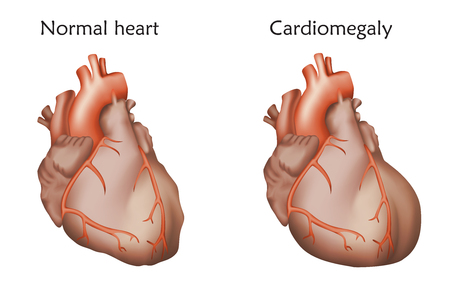 Enlarged and normal heart muscles icon