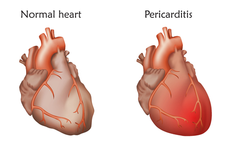 Damaged and normal heart muscles icon