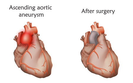 Ascending aortic aneurysm before and after repair. Tube graft and damaged heart muscle. Anatomy illustration. Colorful image, white background.