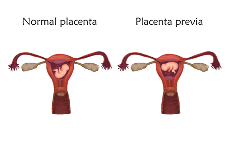 Placenta previa and normal pregnancy. Vector medical illustration in white background.