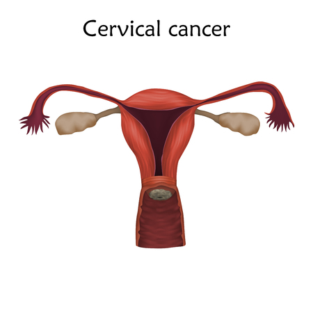 Cervical cancer illustration with human realistic uterus and cervix.