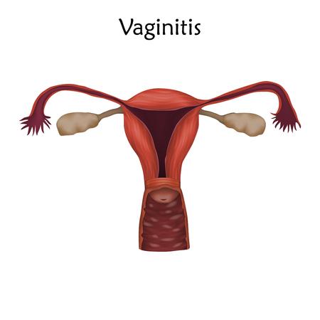 Vaginitis. Human realistic uterus. Anatomy illustration.
