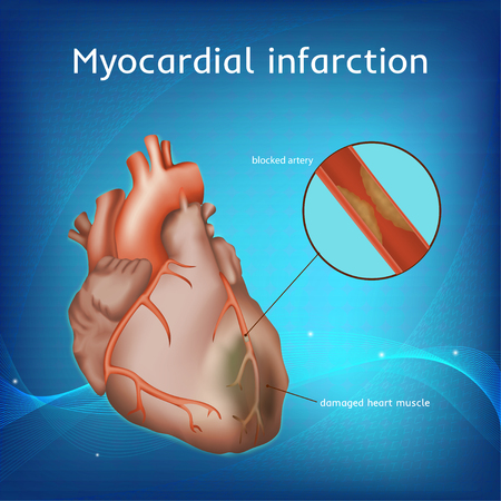 Myocardial infarction. Heart attack. Blocked artery, damaged heart muscle. Anatomy illustration. Red image. Blue science background.