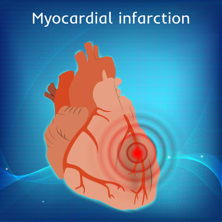 Myocardial infarction. Heart attack, pain. Damaged heart muscle. Anatomy flat illustration. Red image. Blue science background.