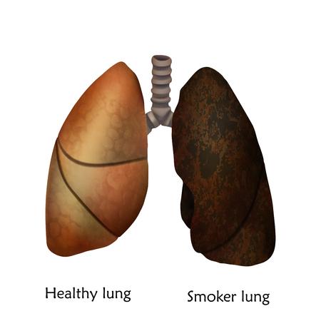Polmoni umani. Illustrazione di polmone sano e fumatore. Sfondo bianco.