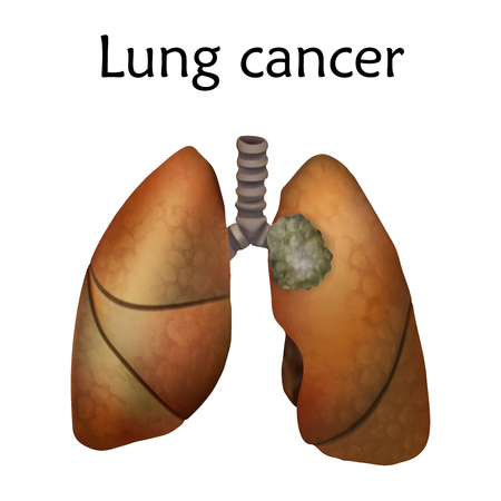Human lungs. Lung cancer illustration. White background. Vector Illustration