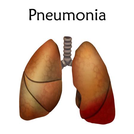 Human lungs. Pneumonia illustration. White background.
