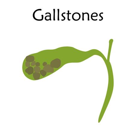 Gallbladder disease, inflammation. Gallstones. Cholecystitis. Anatomy vector flat illustration. White background.