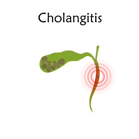 Gallbladder disease, inflammation, gallstone blocks common bile duct. Cholangitis. Anatomy vector flat illustration. White background.