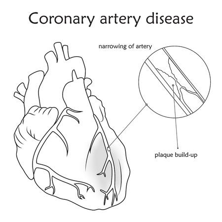 Coronary artery disease. Blocked artery, damaged heart muscle. Anatomy flat illustration. Outline image, white background.