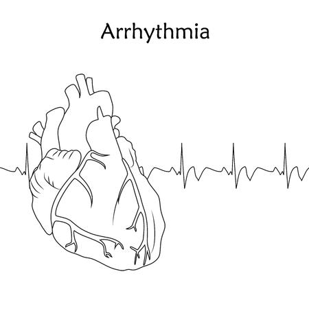 Human heart. Arrhythmia. Anatomy flat illustration. Outline image, white background. Heartbeat, pulse.