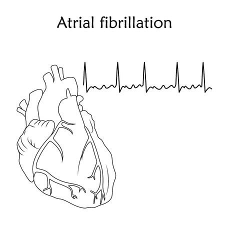 Human heart. Atrial fibrillation. Anatomy flat illustration. Outline image, white background. Heartbeat, pulse. Иллюстрация