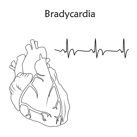 Human heart. Bradycardia. Anatomy flat illustration. Outline image, white background. Heartbeat, pulse.
