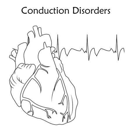 Human heart. Conduction Disorders. Anatomy flat illustration. Outline image, white background. Heartbeat, pulse.