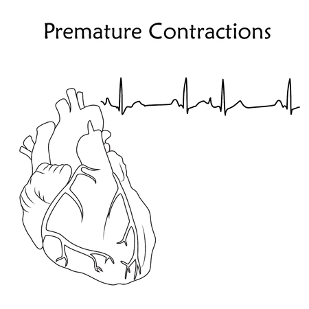 Human heart. Premature Contractions. Anatomy flat illustration. Outline image, white background. Heartbeat, pulse.