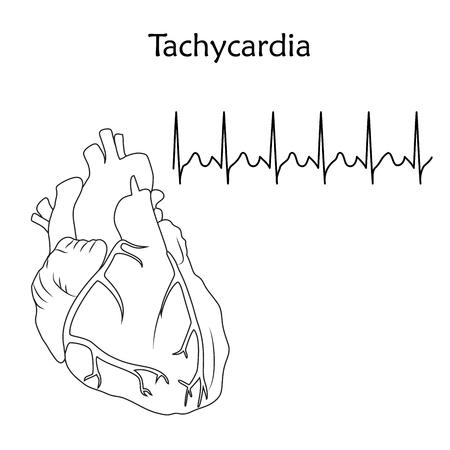 Human heart. Tachycardia. Anatomy flat illustration. Outline image, white background. Heartbeat, pulse.