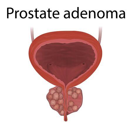 Adenom der Prostata. Realistische medizinische Vektorillustration.