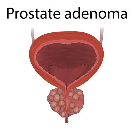 Adenoma of prostate gland. Realistic vector medical illustration.