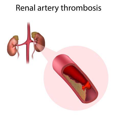 Renal artery thrombosis. Vector medical anatomy illustration. Illustration