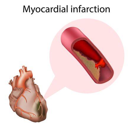 Myocardial infarction. Heart attack. Vector medical anatomy illustration. Illustration