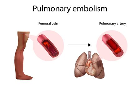 Pulmonary embolism, deep vein thrombosis. Vector medical anatomy illustration. 向量圖像