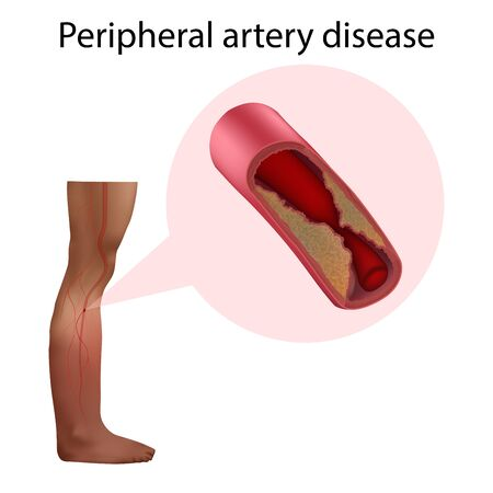 Peripheral artery disease. Vector medical anatomy illustration.