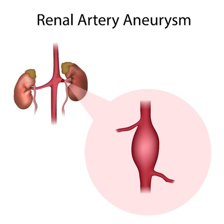 Renal Artery Aneurysm. Vessel, artery. Medical anatomy illustration. Reklamní fotografie