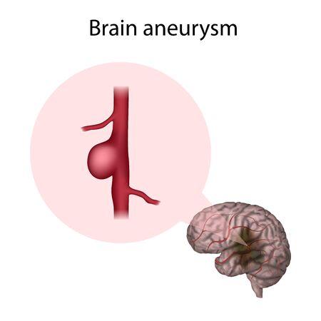 Brain Aneurysm. Cerebral, venticular. Medical anatomy illustration.