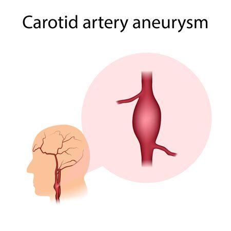 Carotid artery aneurysm. Widening of the vessel. Medical illustration.
