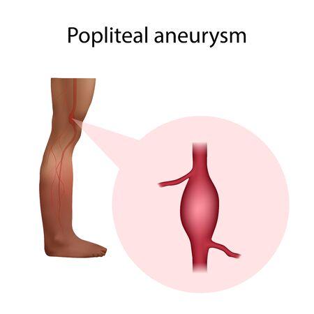 Popliteal aneurysm. Leg, artery. Medical anatomy illustration.