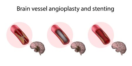 Brain vessel angioplasty and stenting. Medical anatomy illustration.