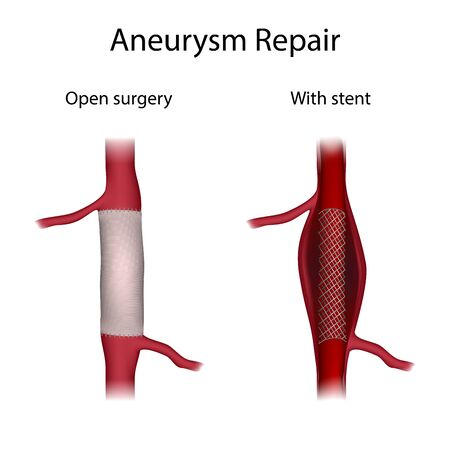Aneurysm repair, open surgery, with stent. Medical anatomy illustration.