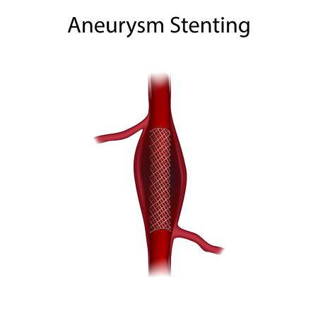 Aneurysm repair with stenting. Medical anatomy illustration.
