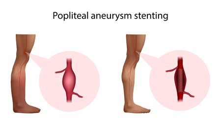 Popliteal aneurysm stenting. Before and after surgery. Medical anatomy illustration.