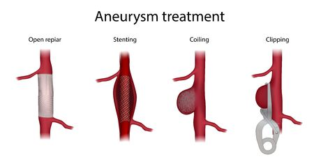 Aneurysm treatment. Clipping, open surgery repair, stenting, coiling. Medical anatomy illustration.