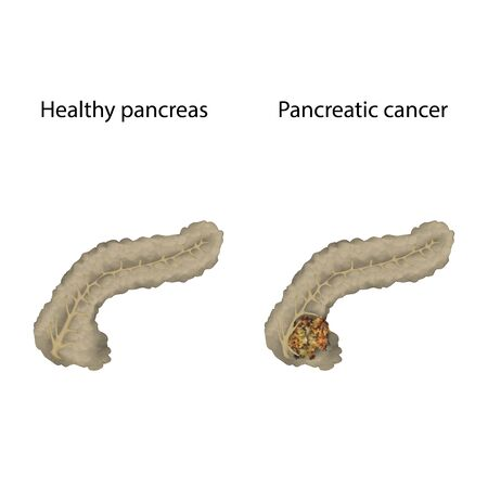 Pancreatic cancer. Pancreas, tumor, healthy. Medical anatomy illustration. Фото со стока