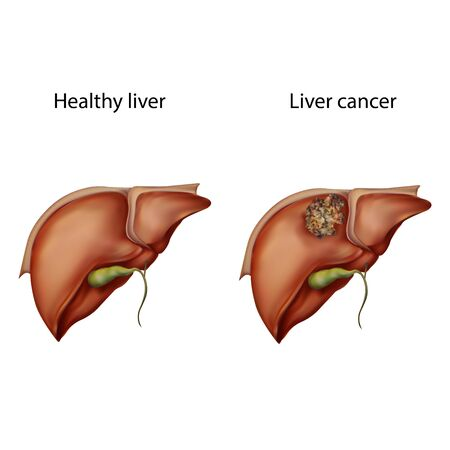 Liver cancer. Healthy, tumor. Oncology. Medical anatomy illustration.