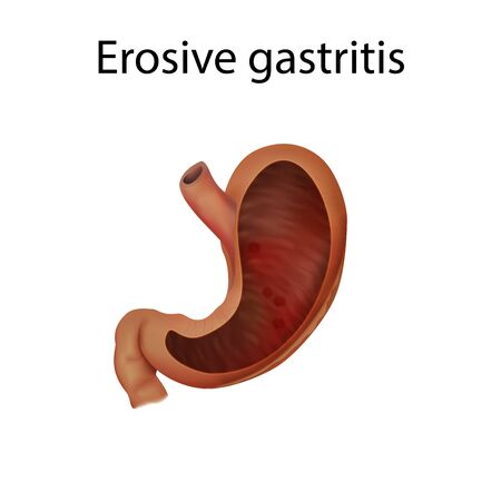 Gastritis erosive. Abdominal inflammation, infection. Medical anatomy illustration.