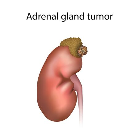 Adrenal gland tumor. Disease. Medical anatomy illustration. Фото со стока
