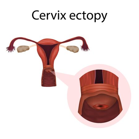 Cervix ectopy. Erosion. Cervical disease. Medical anatomy illustration.
