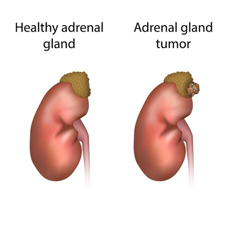 Adrenal gland tumor and healthy organ. Disease. Medical anatomy illustration. Фото со стока