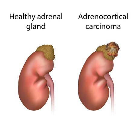 Adrenocortical carcinoma, cancer and healthy organ. Adrenal gland tumor. Medical anatomy illustration. Фото со стока