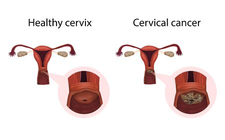 Cervix cancer and healthy organ. Tumor. Cervical disease. Medical anatomy illustration. Фото со стока