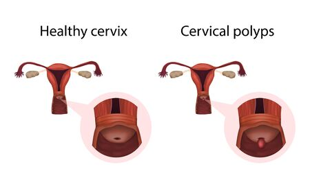 Cervix polyps and healthy organ. Cervical disease. Abnormal growth of tissue. Medical anatomy illustration. Фото со стока