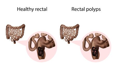 Rectal polyps and healthy organ. Abnormal growth of tissue. Medical anatomy illustration.