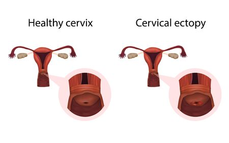 Cervix ectopy and healthy organ. Erosion. Cervical disease. Medical anatomy illustration.