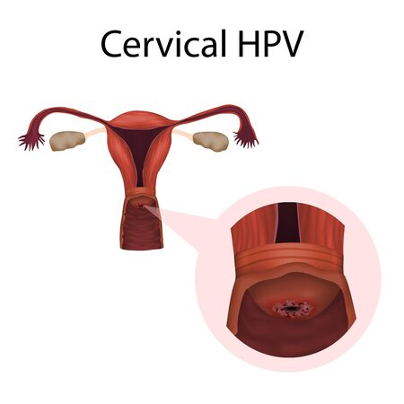 Cervix HPV. Papillomavirus. Cervical disease. Medical anatomy illustration.