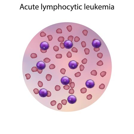 Acute lymphocytic leukemia. Immature lymphocytes. Medical anatomy illustration. Фото со стока